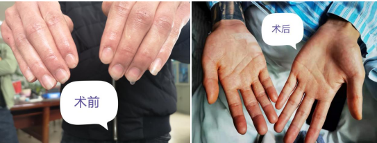 手足大量出汗是病态吗